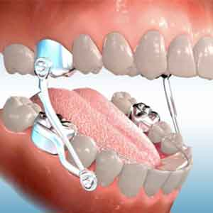 lingual-braces-make-your-teeth-perfect