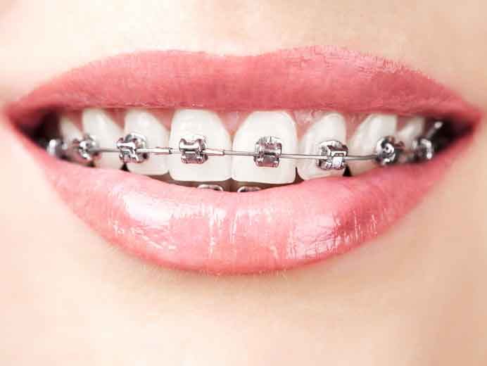 bigstock-teeth-with-braces-40962418