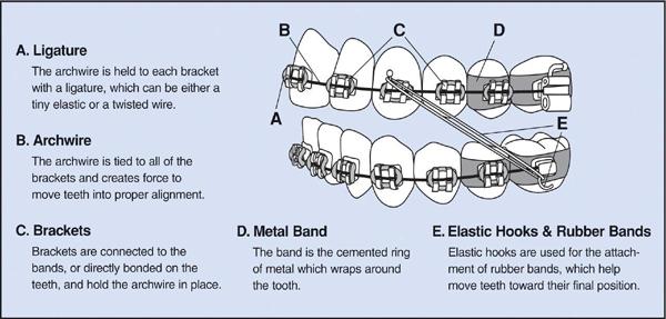 مراحل ارتودنسی ثابت عکس