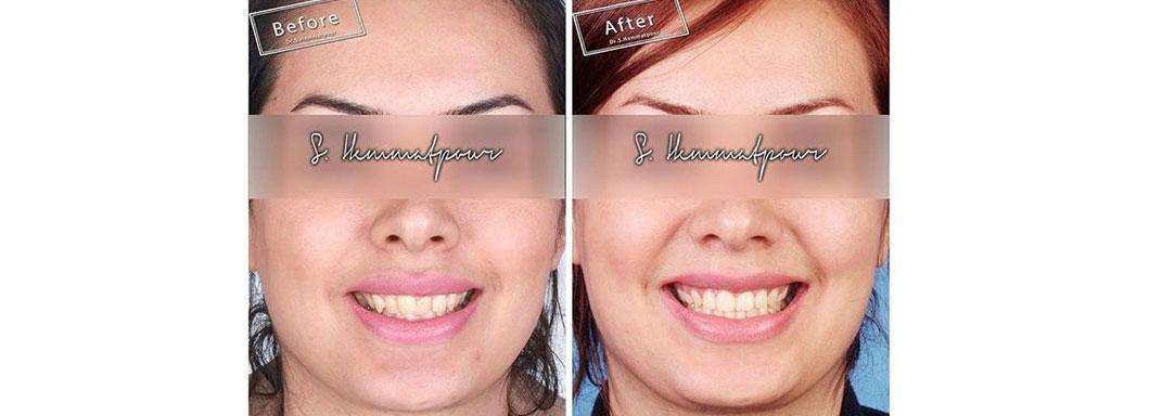درمان ارتودنسی توسط دکتر سیامک همت پور