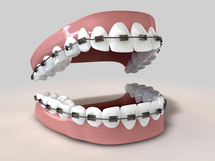 آیا ارتودنسی دندان درد دارد