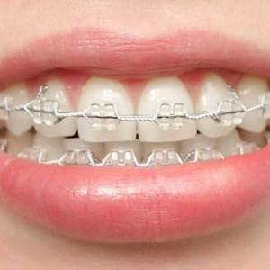 ceramic-brackets1-300x300