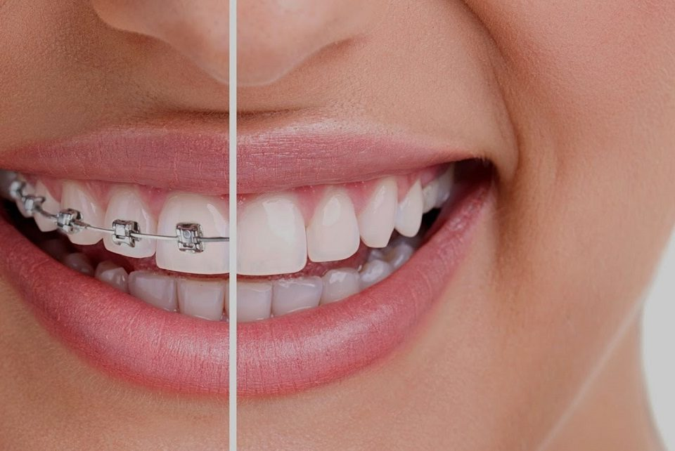 درمان ارتودنسی دندان