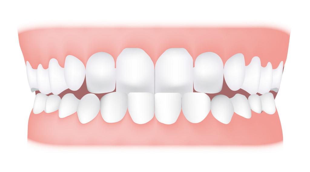 anterior-crossbite-underbite-1024x571