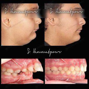 نمونه درمان ارتودنسی بدون جراحی فک