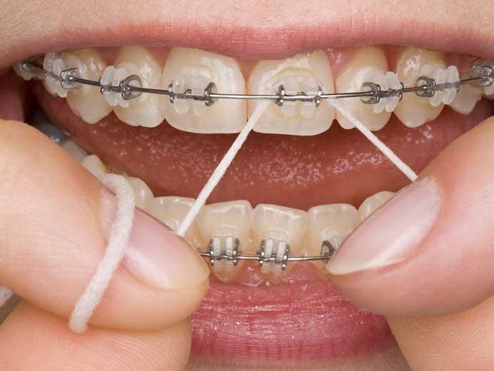 braces-flossing-2