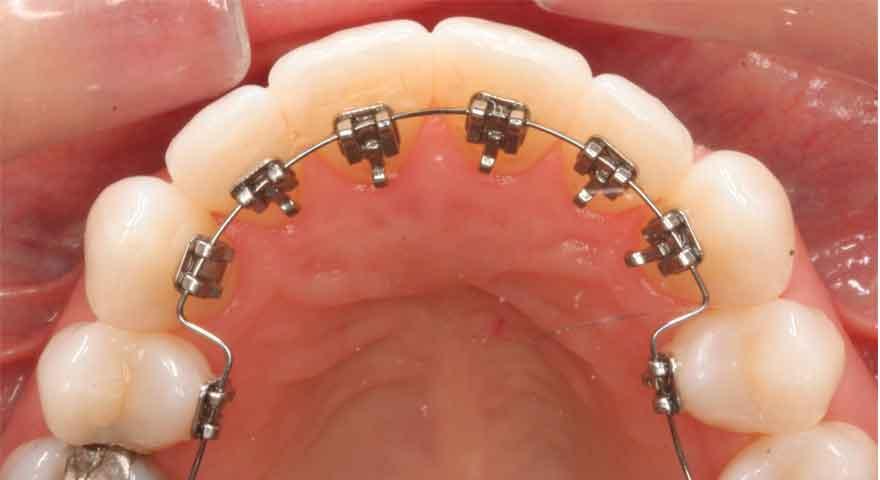 ارتودنسی لینگوال در پشت دندان ها