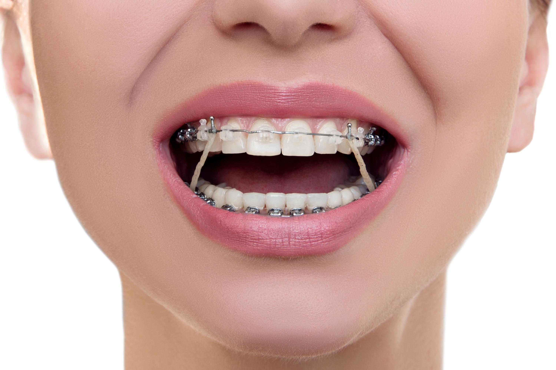 مرتب کردن دندان ها با ارتودنسی
